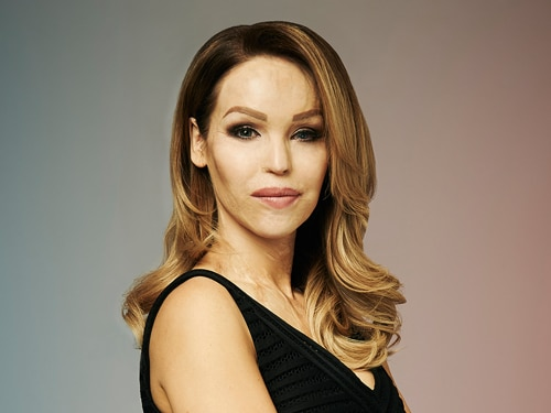 Katie Piper in Bodyshockers